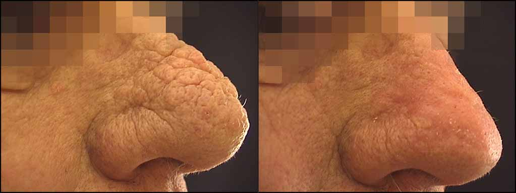rinofima prima e dopo