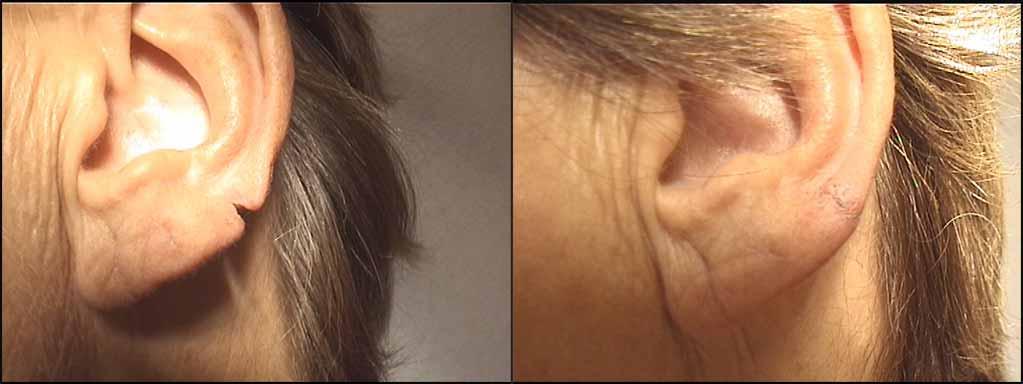 ricostruzione lobo orecchio_tagliato