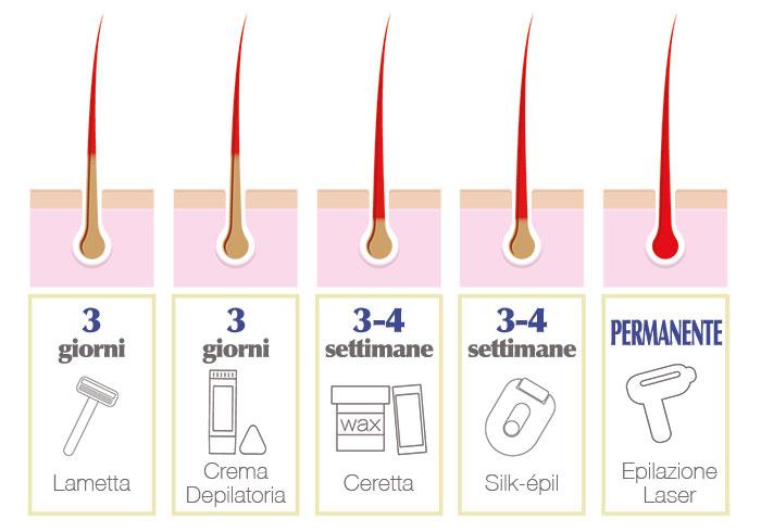 epilazione laser permanente vercelli
